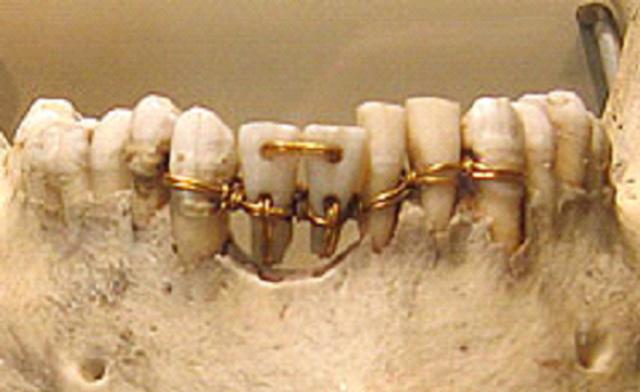 attele egyptienne en or dentaire